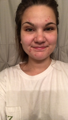 My Accutane Journey, Month 1 Update