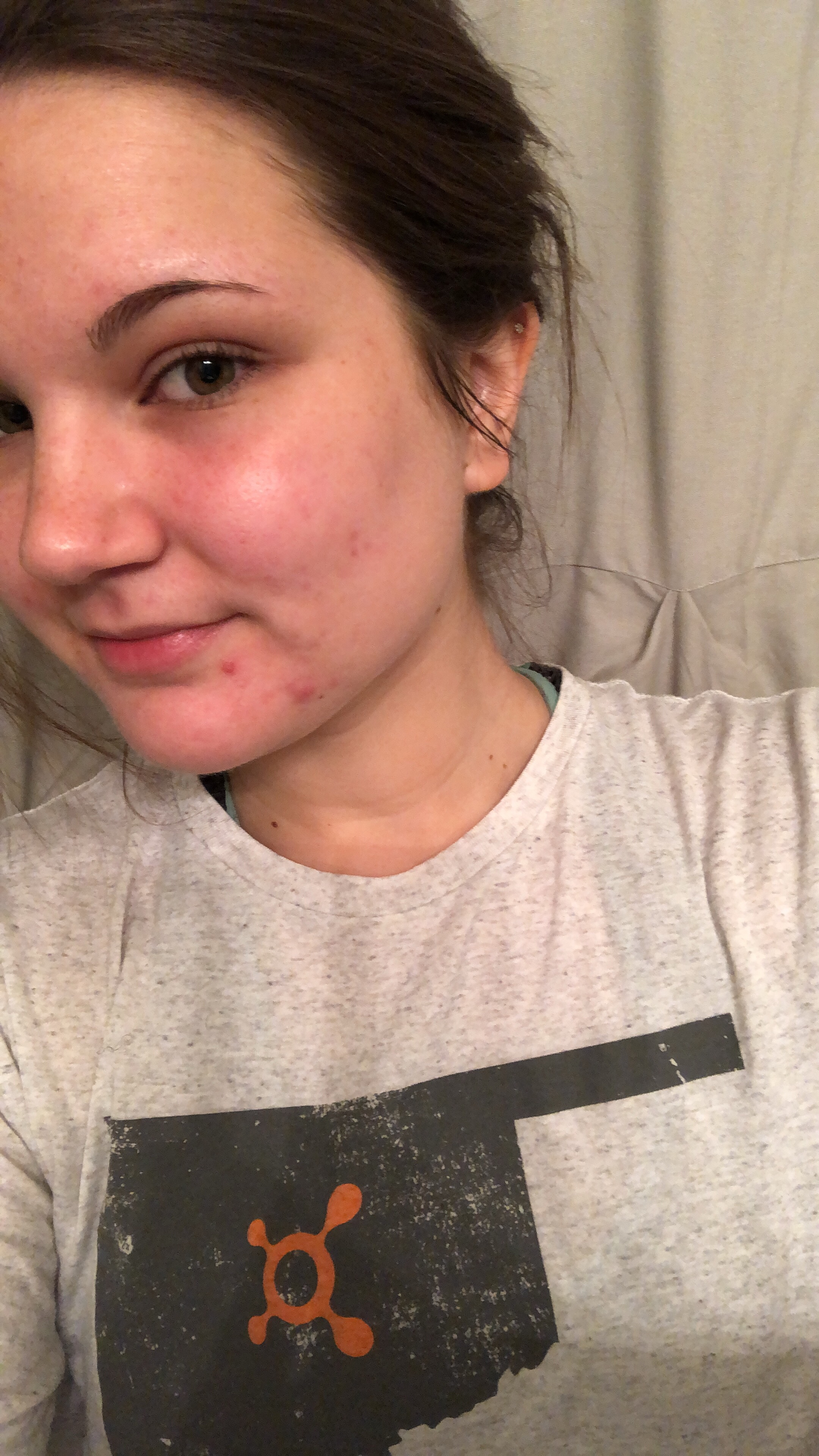 My Accutane Journey, Month 3 Update
